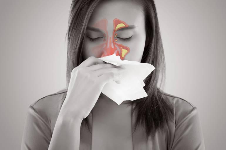 Sinusite que faire : la méthode la plus efficace pour s'en débarrasser